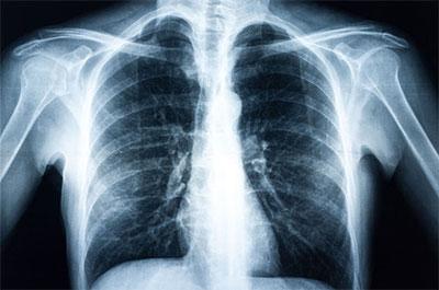 fibrosi cistica polmonare